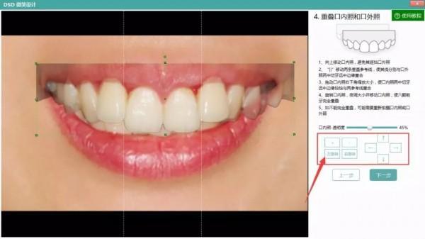 牙医管家口腔管理软件
